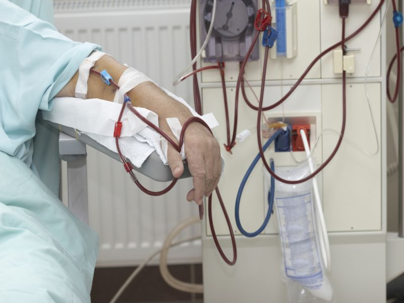 News Picture: Half of Older Dialysis Patients Die Within a Year, Study Finds