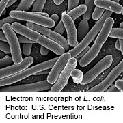 News Picture: Still No Source as E. Coli Outbreak Grows to 96 Cases Across 5 States: CDC
