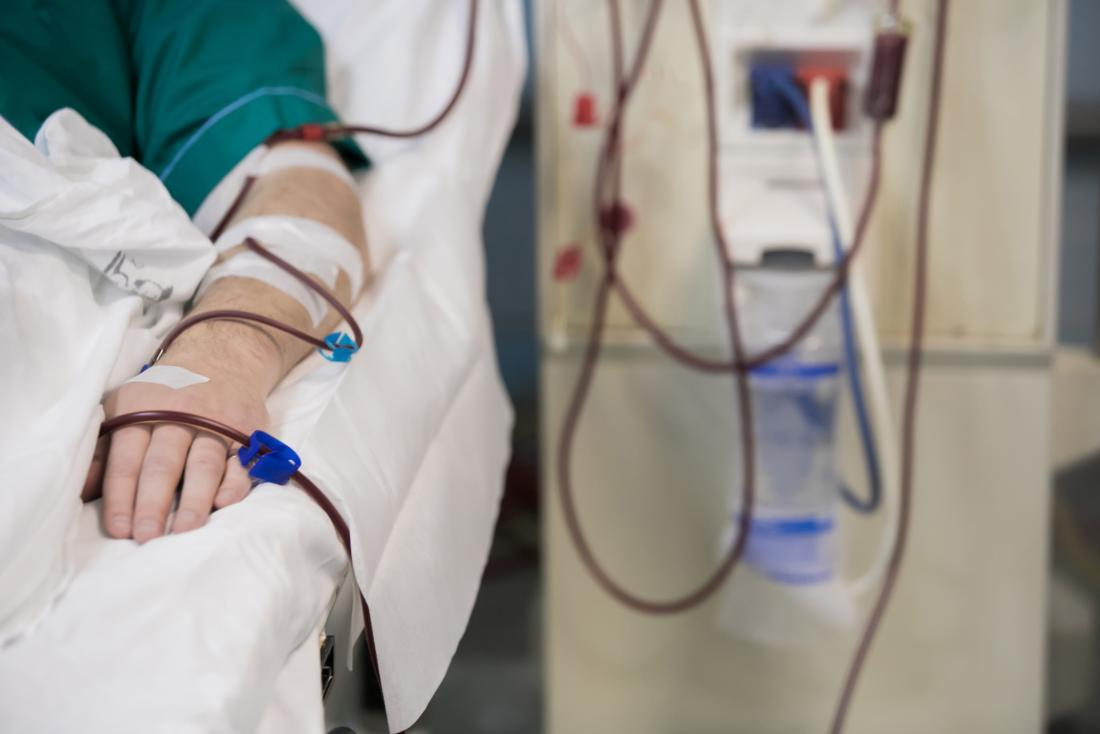 Dialysis can treat severe cases of hyperkalemia.
