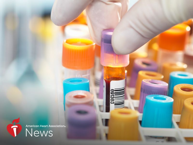 News Picture: AHA News: Predicting Heart Disease, Stroke Could Be as Easy as a Blood Test