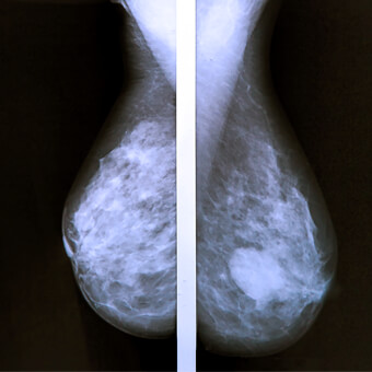 Breast cancer is a malignant tumor that forms in the breast.