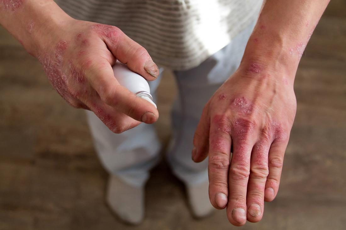 person with psoriasis on their hands