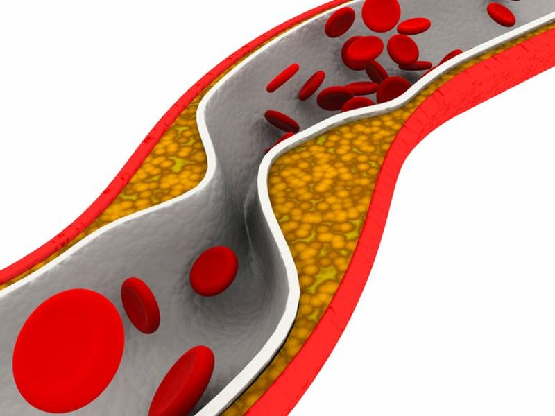 News Picture: Heart Attack Treatment Could Cut 'Bad' Cholesterol by Half Within Hours