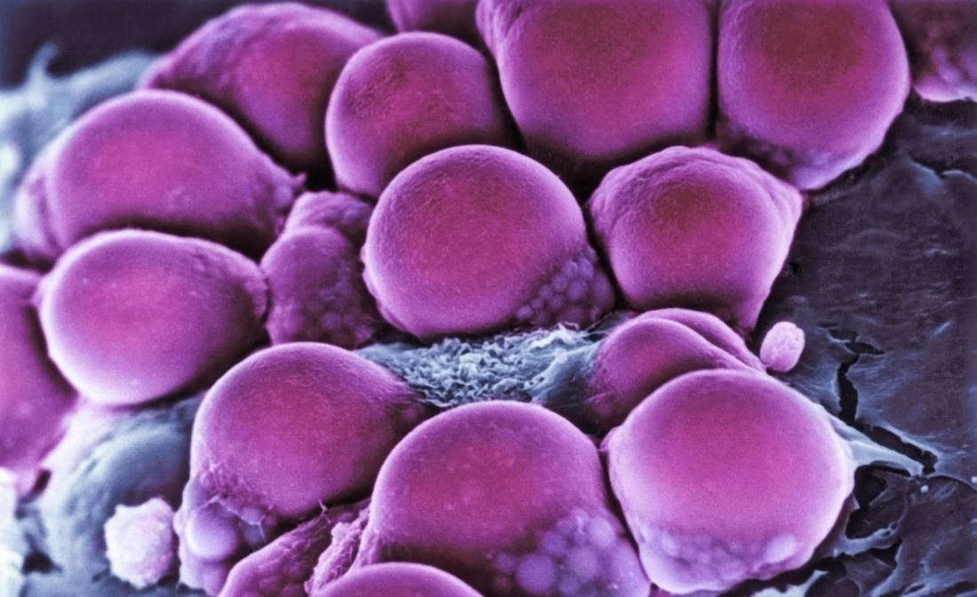 Pink fat cells