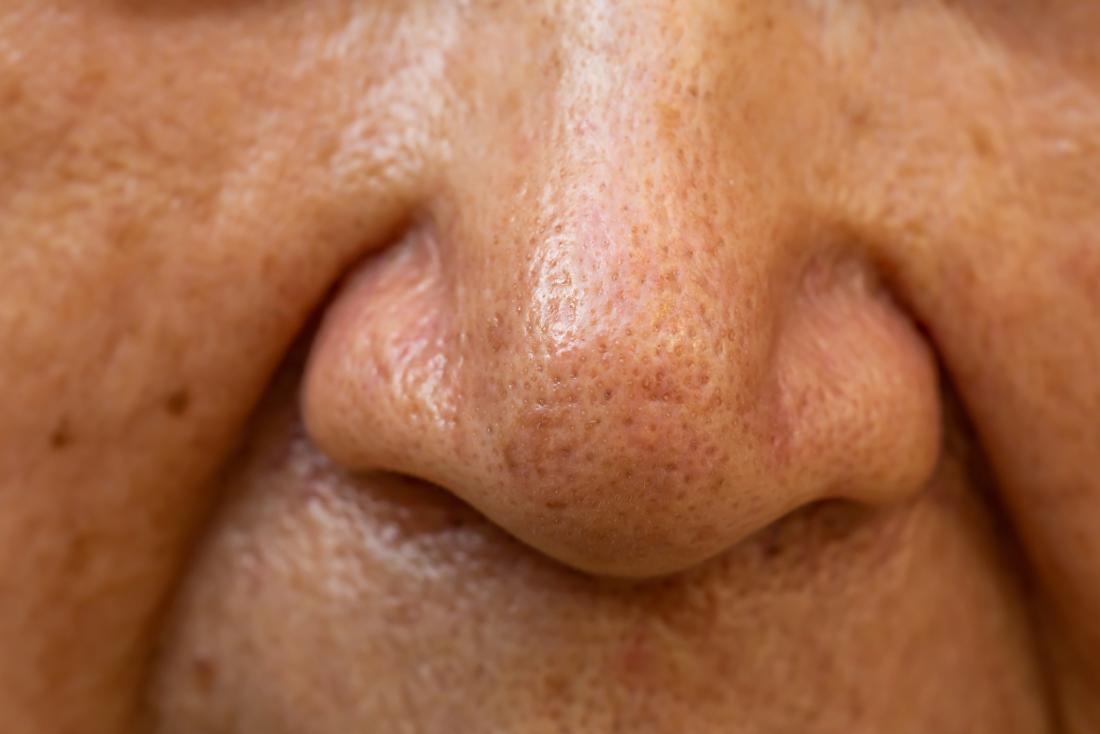 Close up nose older adult