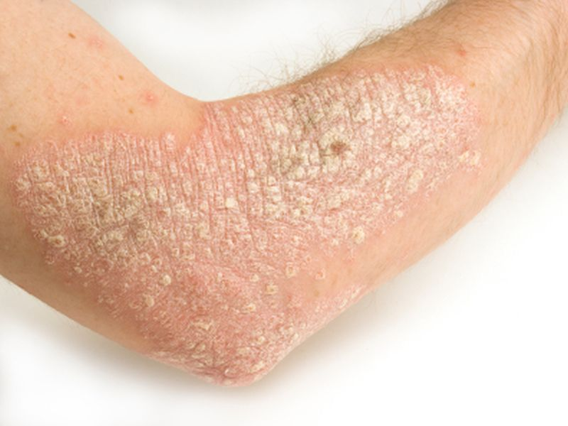 News Picture: Psoriasis, Mental Ills Can Go Hand in Hand
