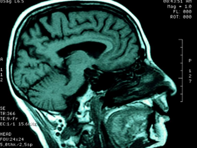 News Picture: Scientists Spot Chemical Signs of Suicidal Thoughts in Brains of Those With PTSD