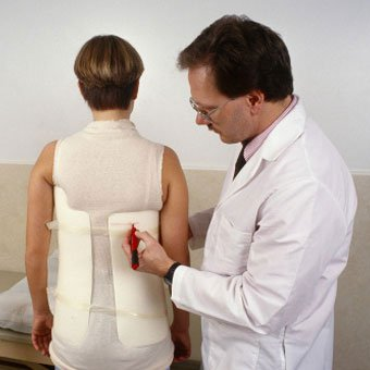 A scoliosis patient is fitted with a correcting brace by a doctor.