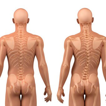 An illustration shows a healthy spine (left) and scoliosis spine curvature (right).