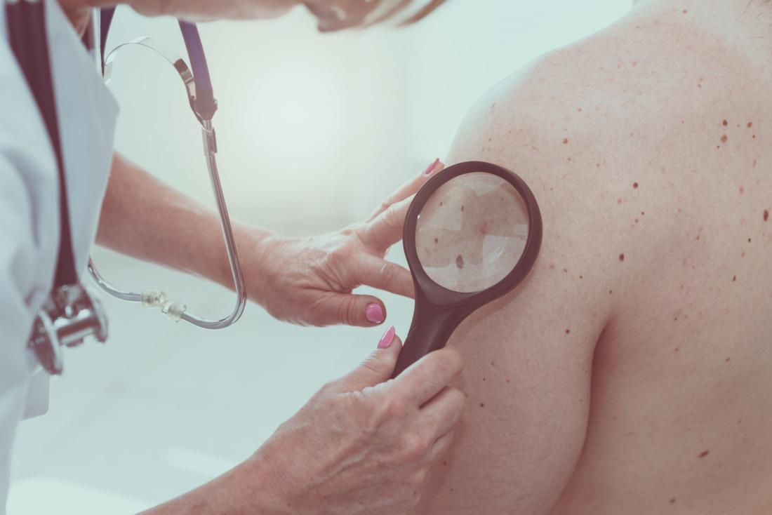 Warning signs of cancer moles