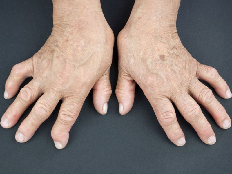 News Picture: Signs of Rheumatoid Arthritis Can Show Up Long Before Diagnosis