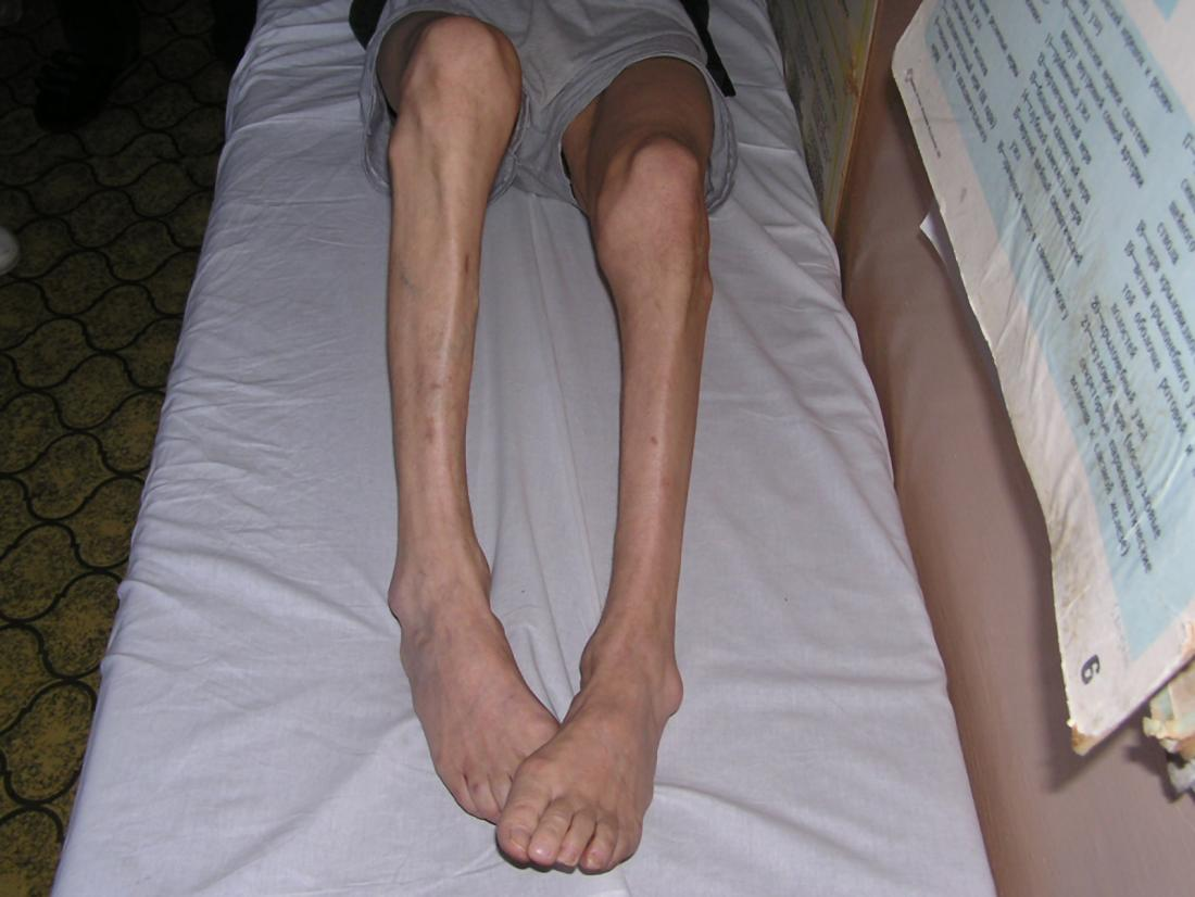 Muscle atrophy in person's legs