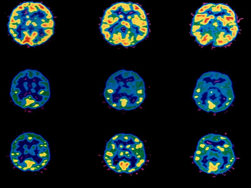 News Picture: Better Treatments Needed to Boost Brain Cancer Survival: Study