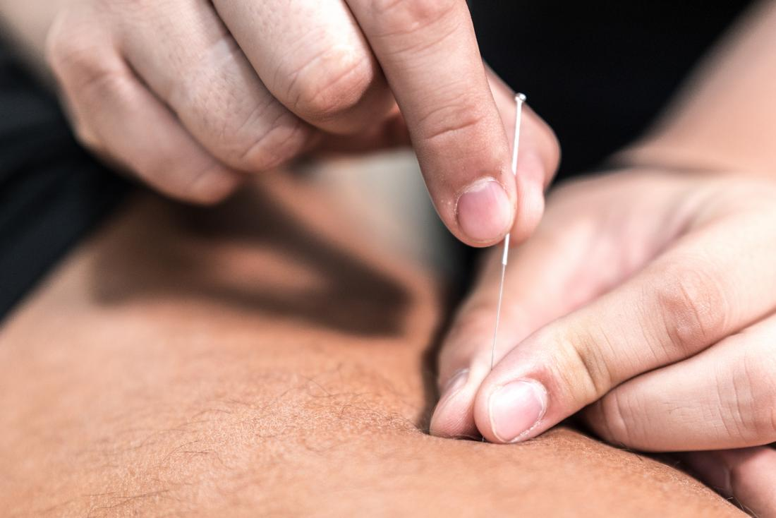 man having acupuncture for psoriasis