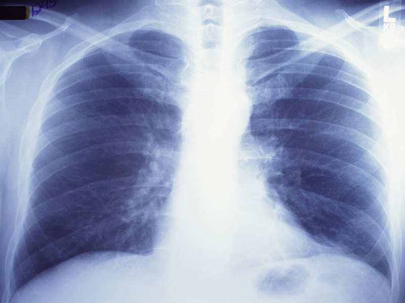 News Picture: 'Double-Edged Sword': Lung Cancer Radiation Rx May Raise Heart Attack Risk