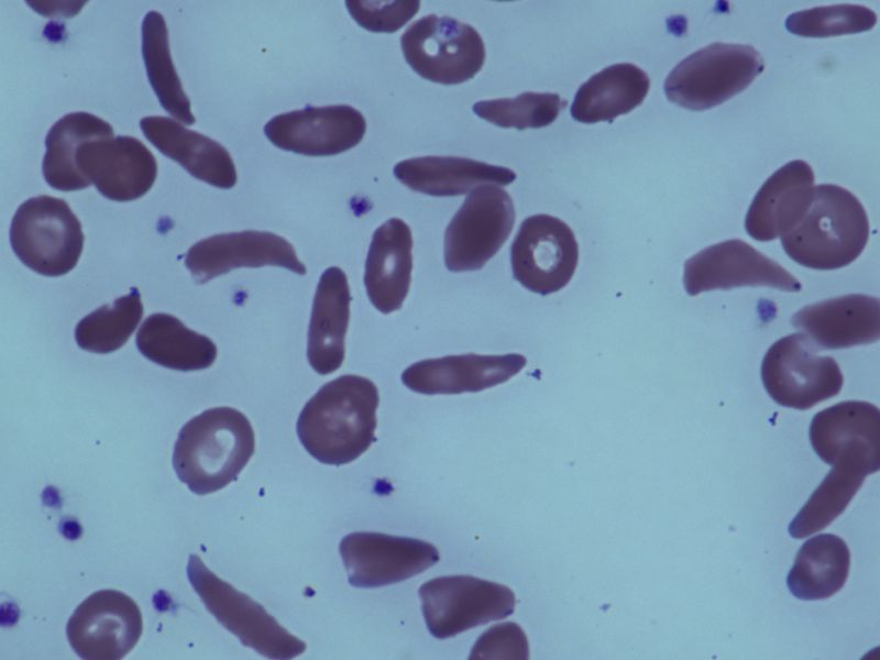 News Picture: Experimental Drug Shows Early Promise Against Sickle Cell Disease