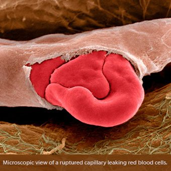 An electron microscope view of a ruptured capillary leaking red blood cells.