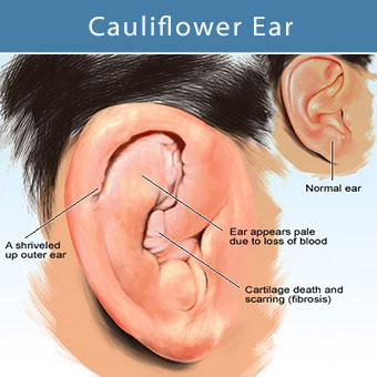 An illustration of an ear hematoma known as cauliflower ear.