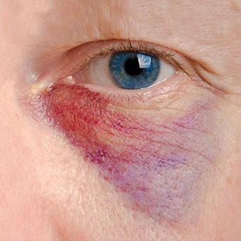 A close up of an under eye hematoma.
