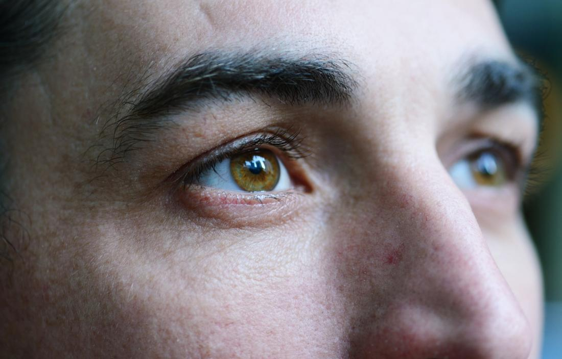 Close up of eyes of person with MS experiencing symptoms affecting vision.
