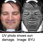 News Picture: Scared Safe: Pics of Sun's Damage to Face Boost Sunscreen Use