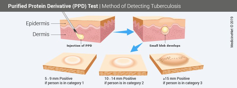 Purified Protein Derivative (PPD) Test
