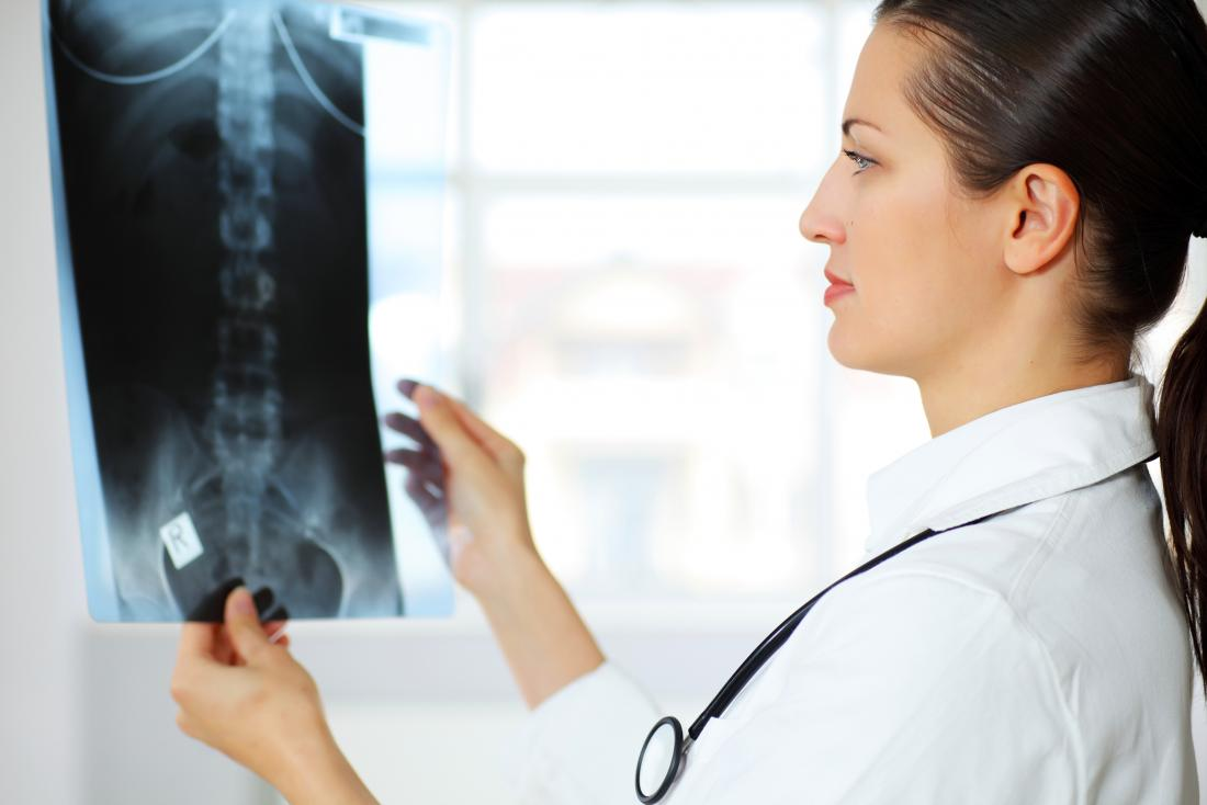 Doctor looking at an X-Ray of a spine