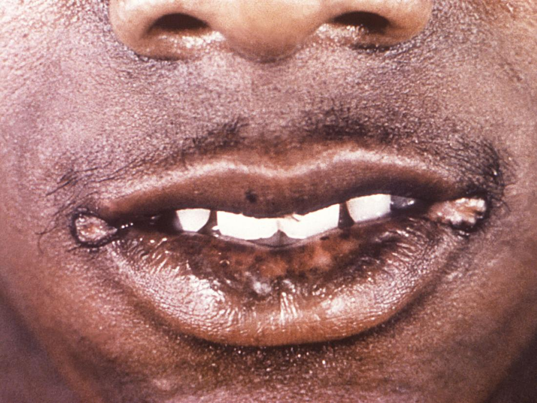 Syphilis causing papules around mouth. Image credit: CDC/ Robert E. Sumpter, 1967.