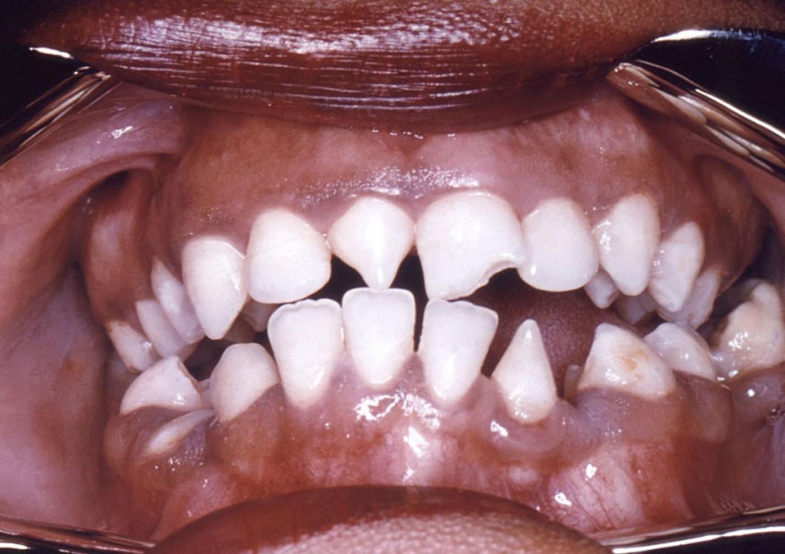 syphilis causing deformity of teeth. Image credit: CDC/ Robert E. Sumpter, 1967.