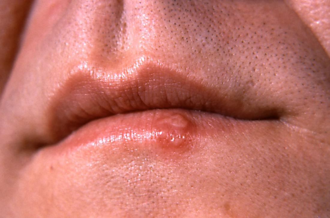 Herpes on lips. Image credit: CDC/ Dr. Hermann, 1964