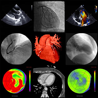 Images of the heart using various techniques.