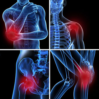 Three-dimensional images illustrate where bursitis can occur on the body.