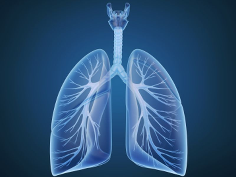 News Picture: Newer Lung Cancer Screening Saves More Lives