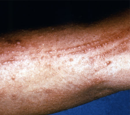 Picture of a poison oak rash