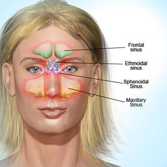 A 3D illustration of sinusitis.