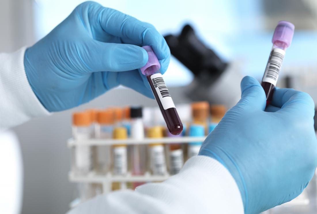 close up of healthcare professional handling blood samples