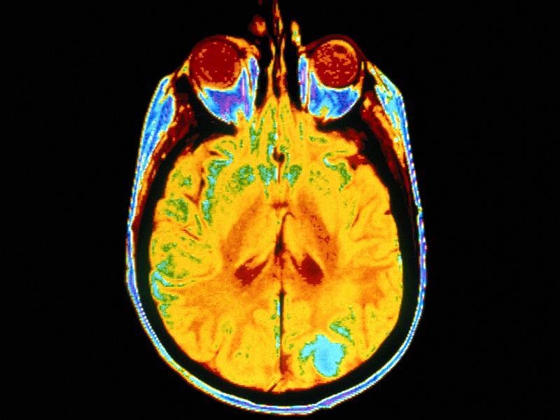 News Picture: Deep Brain 'Zap' Restores Vivid Memories to Alzheimer's Patients