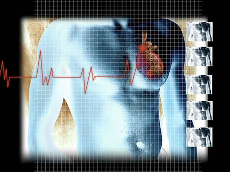 News Picture: How Does Meth Trigger Heart Disease? New Research Offers Clues