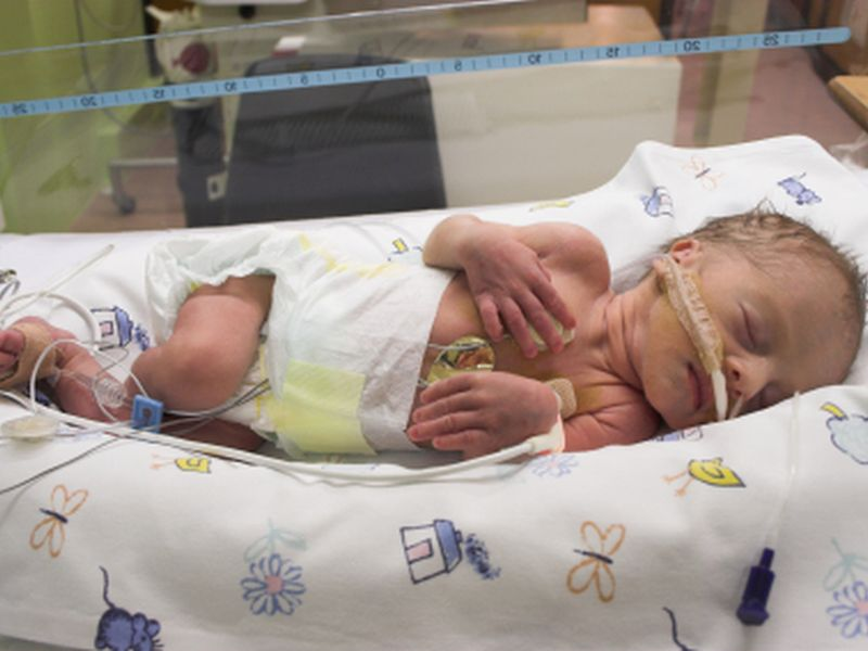 News Picture: Vulnerable Preemie Babies Often Behind On Vaccines