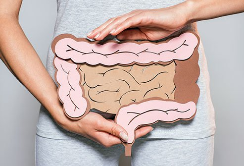 Picture of a Person with Bowel Incontinence