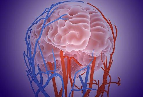 A brain hemorrhage is a type of stroke.