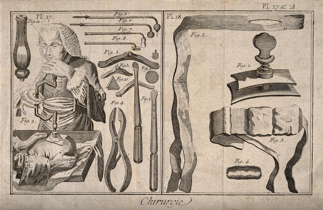Surgical instruments and patients undergoing treatment Wellcome collection