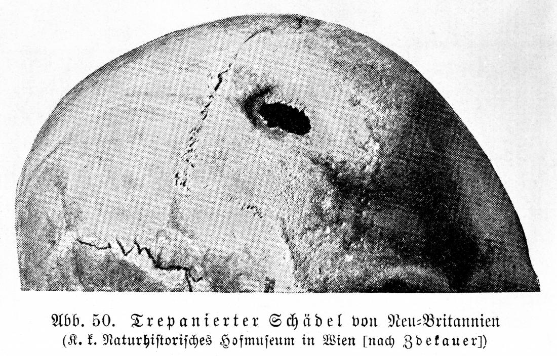 Trepanned skull New Britain Wellcome collection