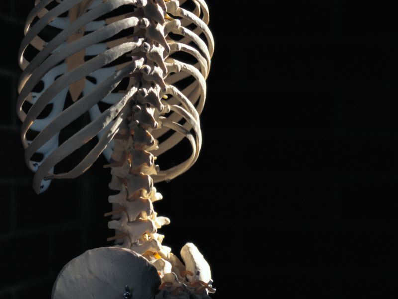 News Picture: How to Keep Your Bones Strong and Prevent Fractures