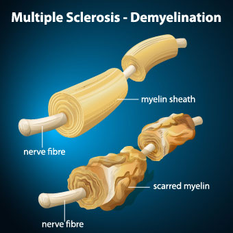 http://www.medicationjunction.com/wp-content/uploads/2019/09/multiple-sclerosis-ms-symptoms-causes-treatment-life-expectancy-2.jpg