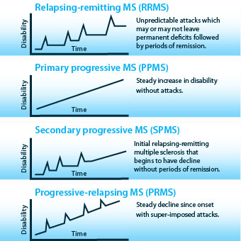 Illustration of the four types of multiple sclerosis and how each one progresses.