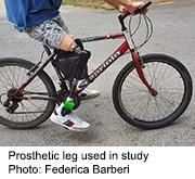 News Picture: New Prosthetic Leg Can Feel Touch, Reduce 'Phantom Limb' Pain