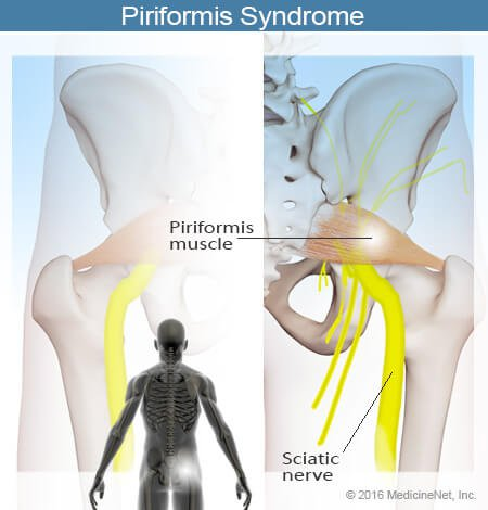 Picture of the piriformis muscle