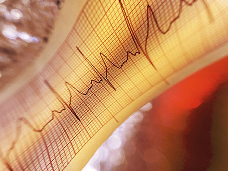 News Picture: Radiation Rx Might Ease a Dangerous Irregular Heart Beat