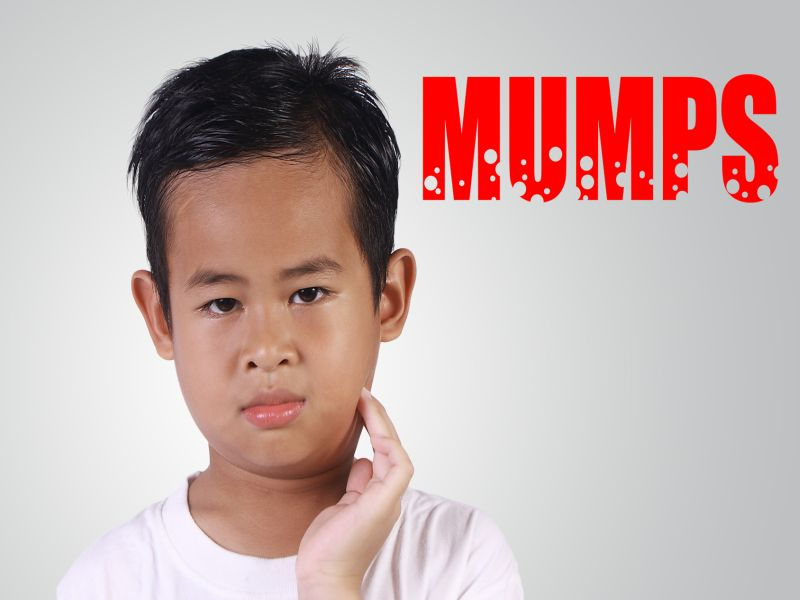 News Picture: Some People Vaccinated Against Mumps May Not Be Protected: Study